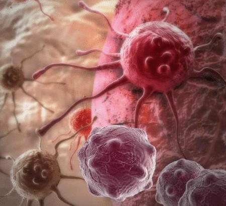Причины рака - как начинается рак, пусковые факторы возникновения