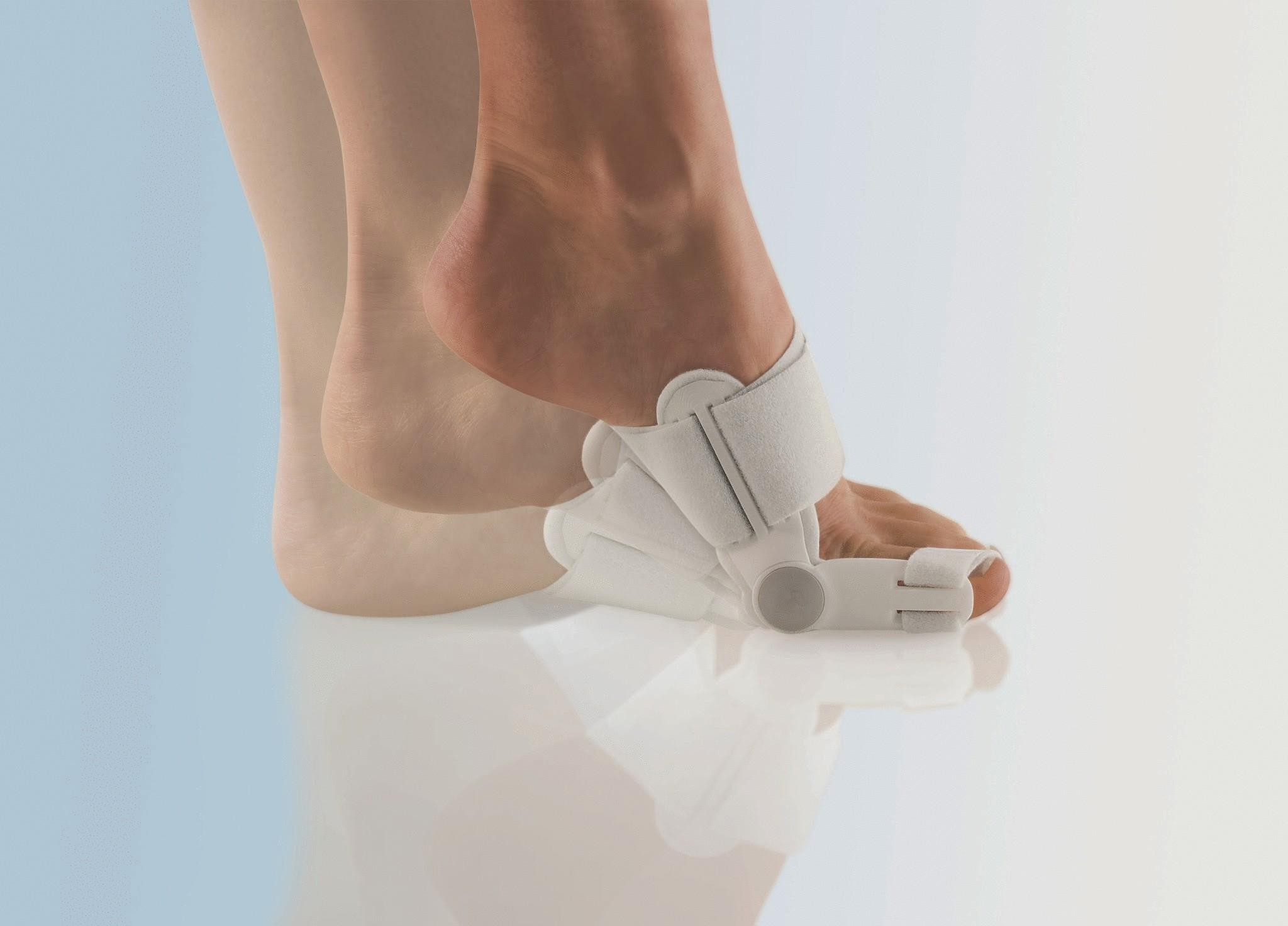 Как избавиться от косточки у большого пальца на ногах