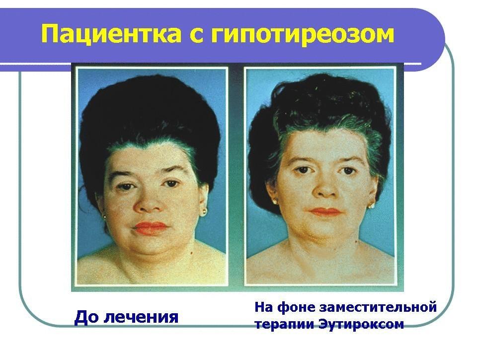 Лечении зппп у женщин