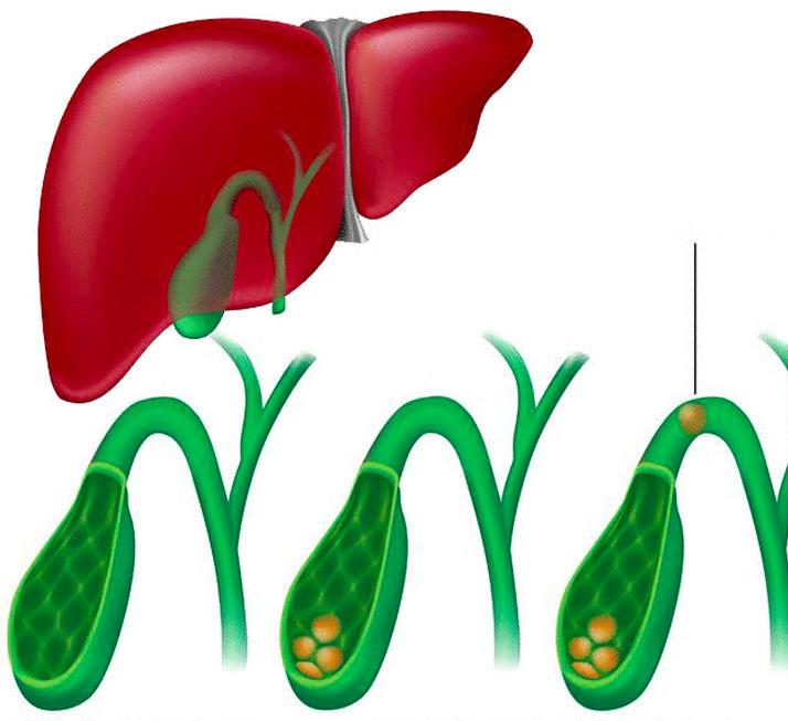 Сок калины и атеросклероз