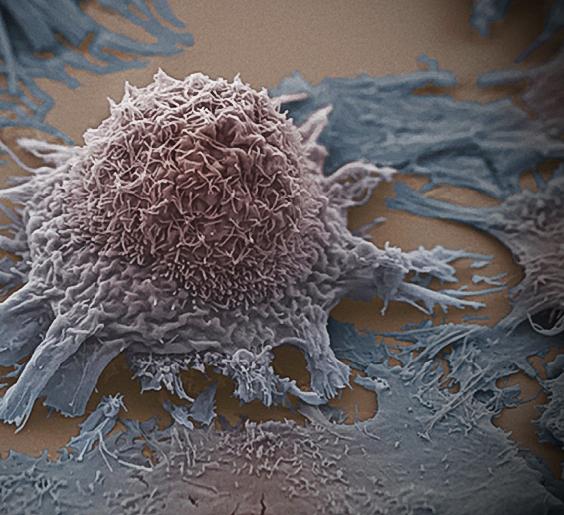 Как Победить Рак Без Химиотерапии и Облучения