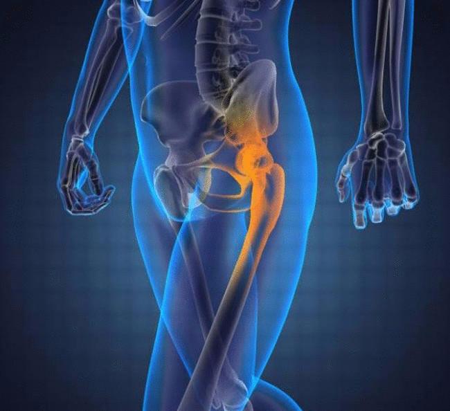 Какие упражнения нужно делать при артрозе тазобедренного сустава