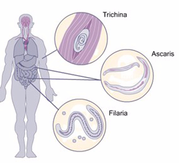 избавиться от паразитов легких