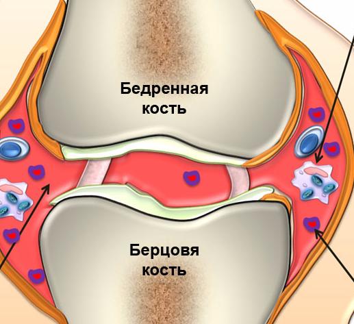 рецепты народных средств от болезни суставов