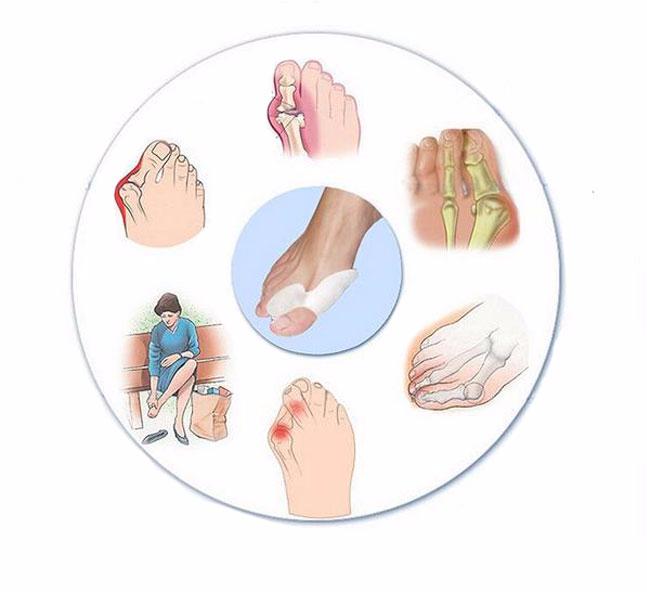 Как помогает массаж и лфк в лечении вальгусной деформации стопы у детей