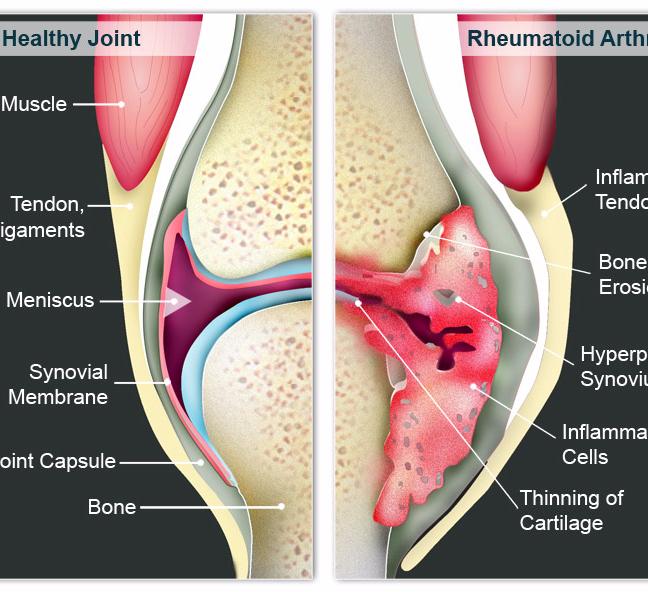 Лечение артроза коленного сустава дегтем -