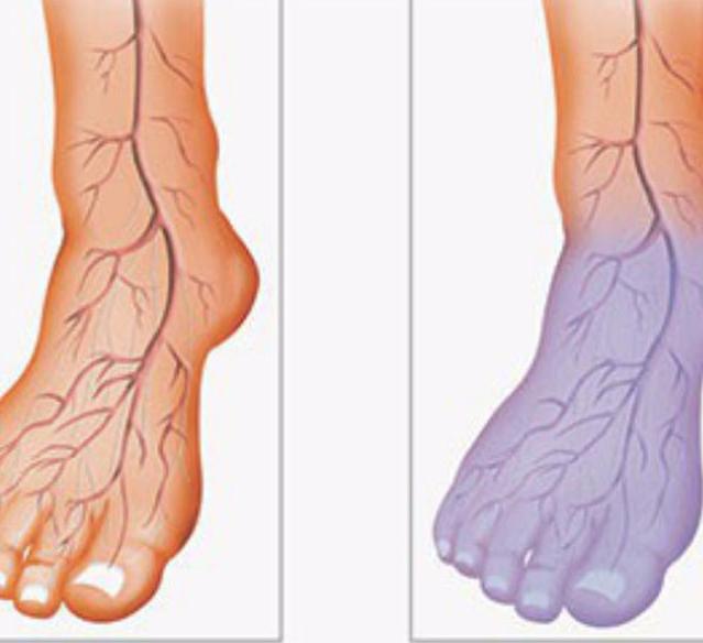 Препараты для улучшения кровообращения нижних конечностей