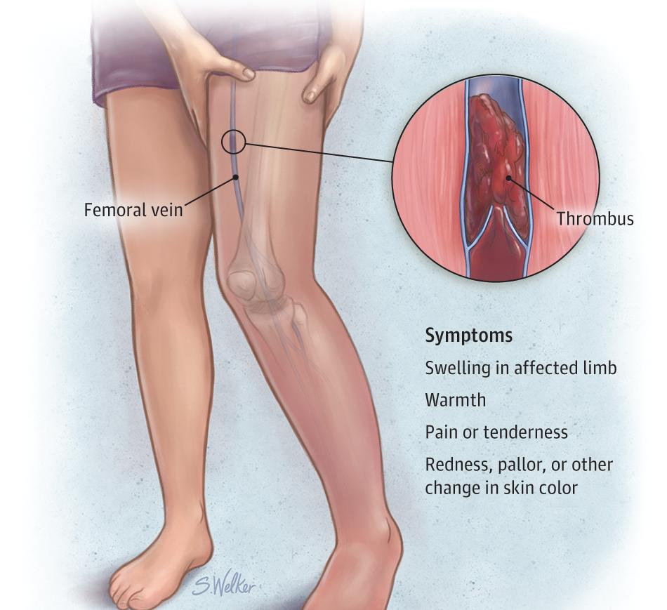 Как избежать тромбофлебита профилактическими методами