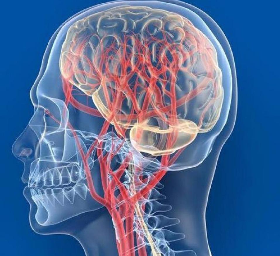 Нарушение мозгового кровообращения: симптомы и лечение изоражения
