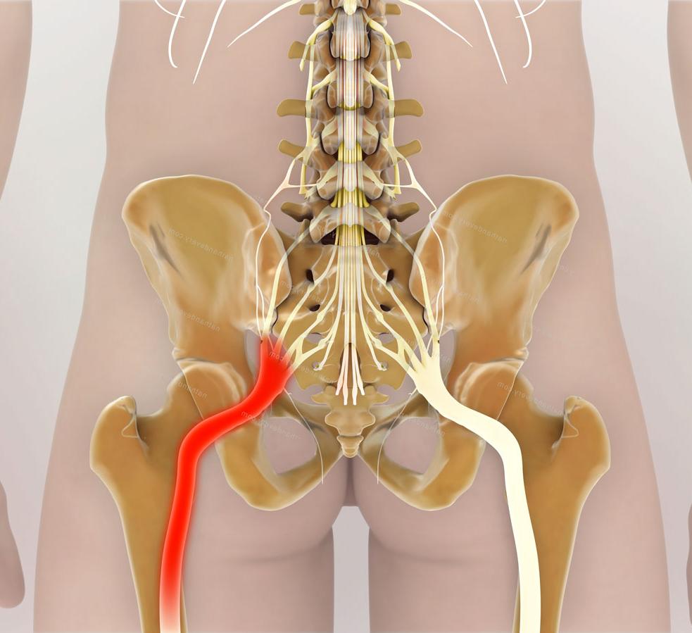уверены, седалищный нерв фото по скелету типично для куньих