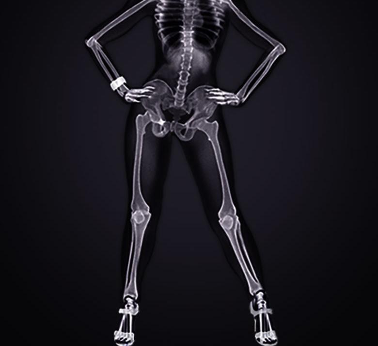 Кальций какие продукты вымывают кальций из костей