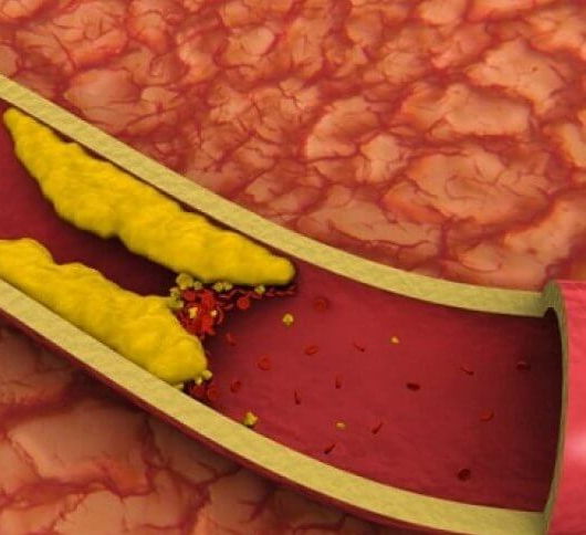 пониженный холестерин в крови у женщин причины