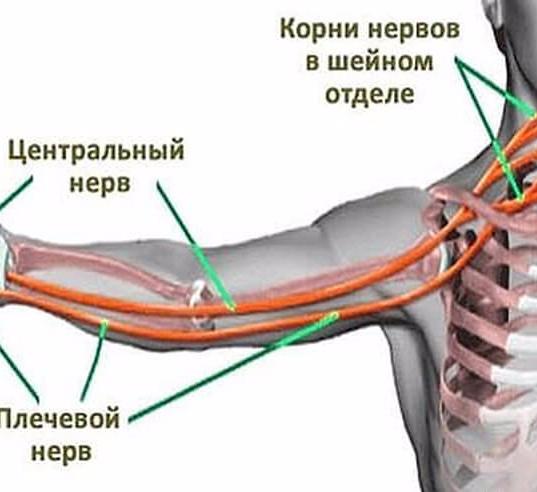 при шейном остеохондрозе немеет левая рука это отличная