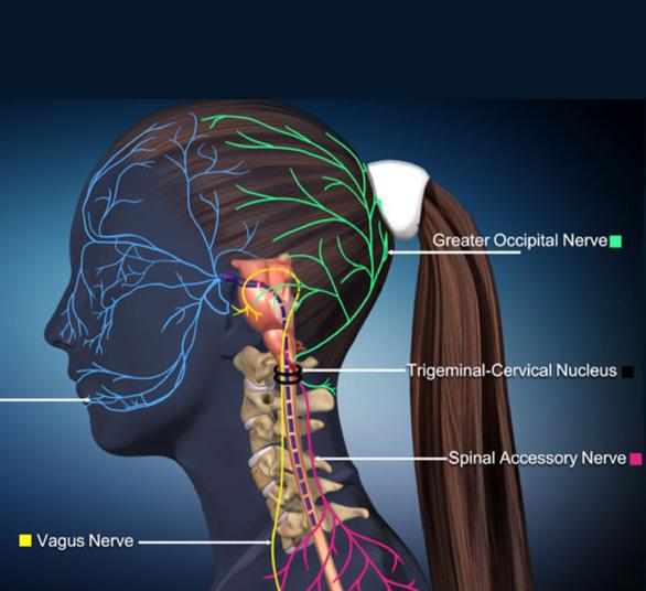 Мигрень от остеохондроза шейного отдела