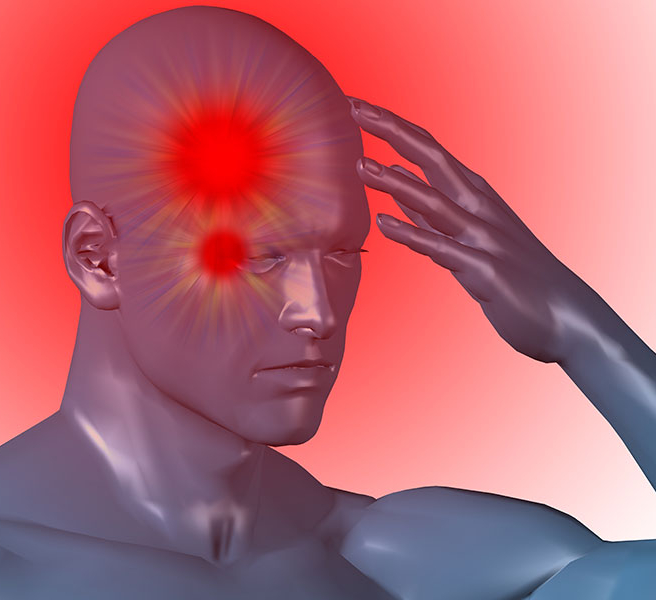 Кластерная головная боль (пучковая): причины, симптомы, лечение