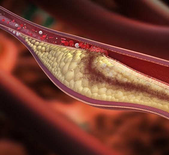 Водка снижает холестерин в крови