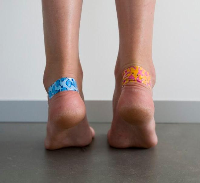 Чем быстро вылечить мозоли от обуви