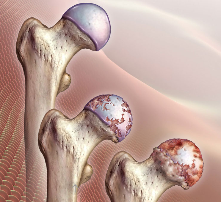 Лечение степеней коксартроза тазобедренного сустава