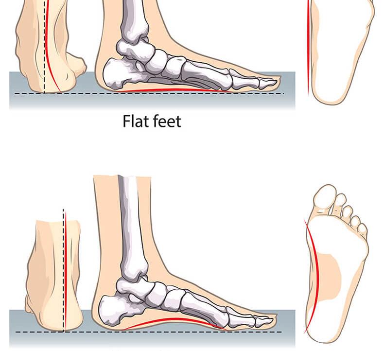Упражнения для лечения плоскостопия у взрослых в домашних условиях