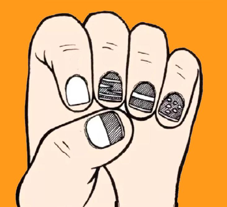 Белые пятна на ногтях или лейконихия