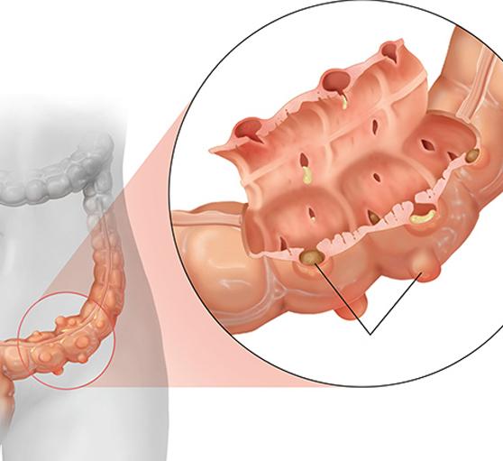 Препараты при дивертикулезе кишечника