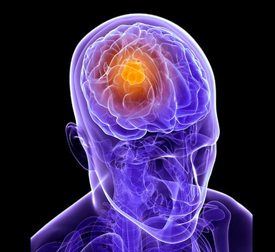 Опухоль головного мозга признаки