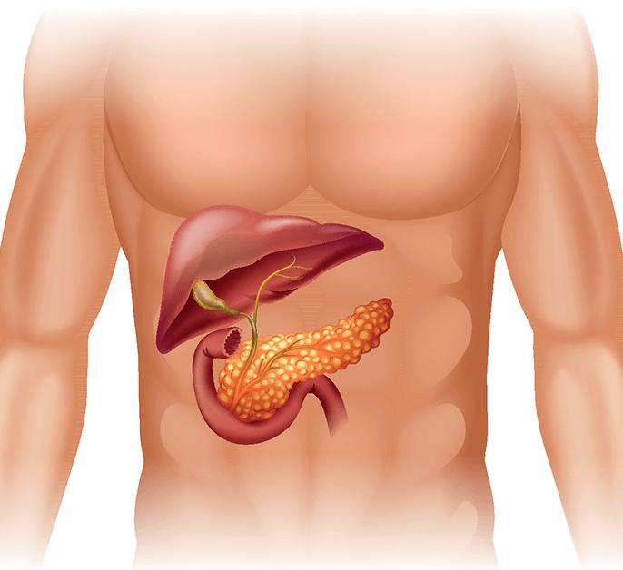Что такое липоматоз поджелудочной железы и как его лечить