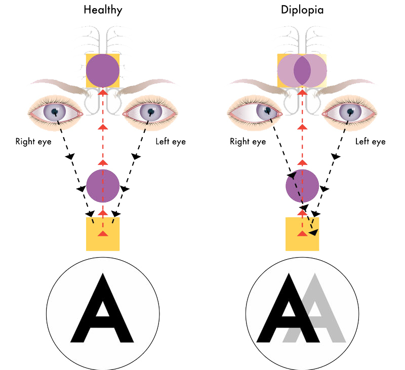 Психосоматика конъюнктивит — Все о проблемах с глазами