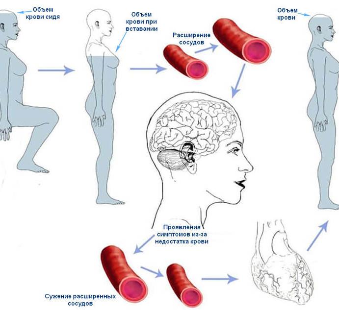 Что делать если резко упало артериальное давление у гипертоника