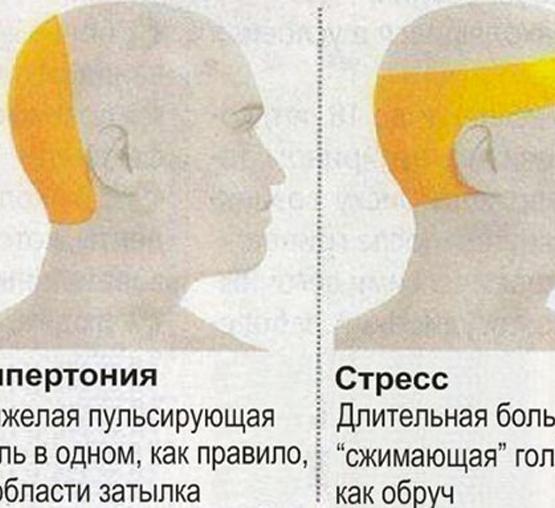 Боль в затылке головы (сильная, резкая, давящая, тупая): причины, что делать