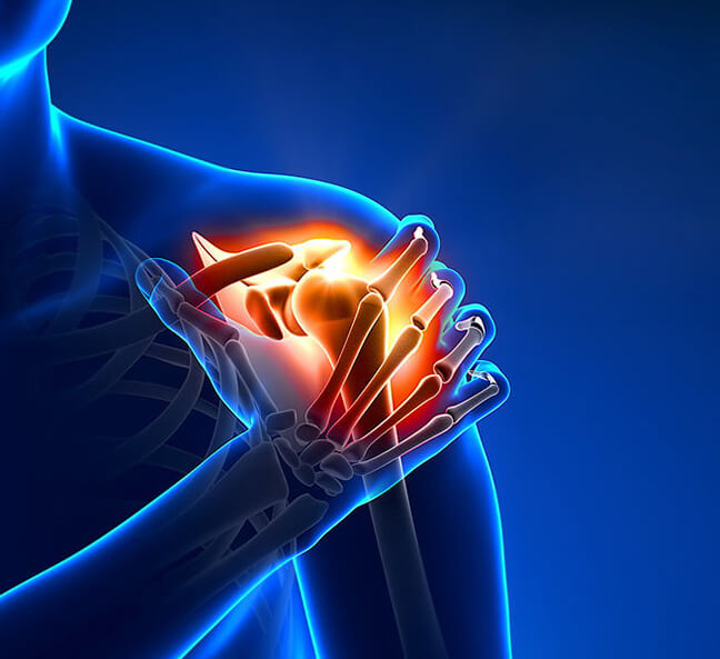 Тендинит плечевого сустава: симптомы и лечение