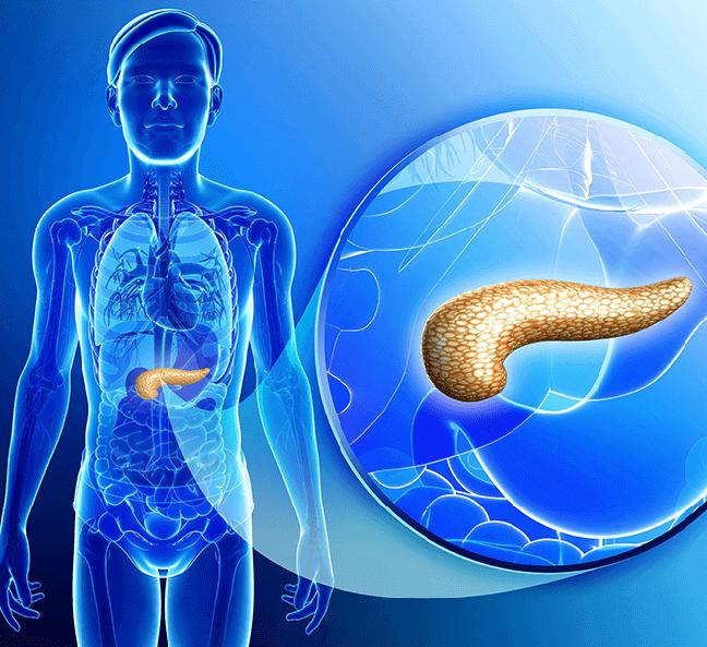 Стеатоз поджелудочной железы: что это такое и как лечится. Диета при стеатозе поджелудочной.