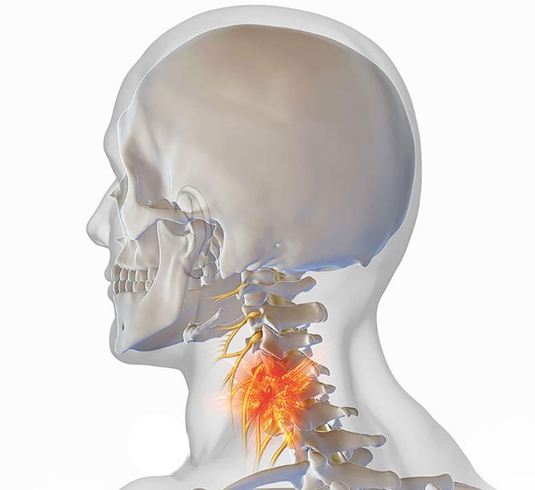 остеохондроз шеи что принимать
