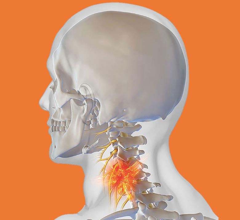 Боль в шее отдает в голову: причины боли в шее и голове