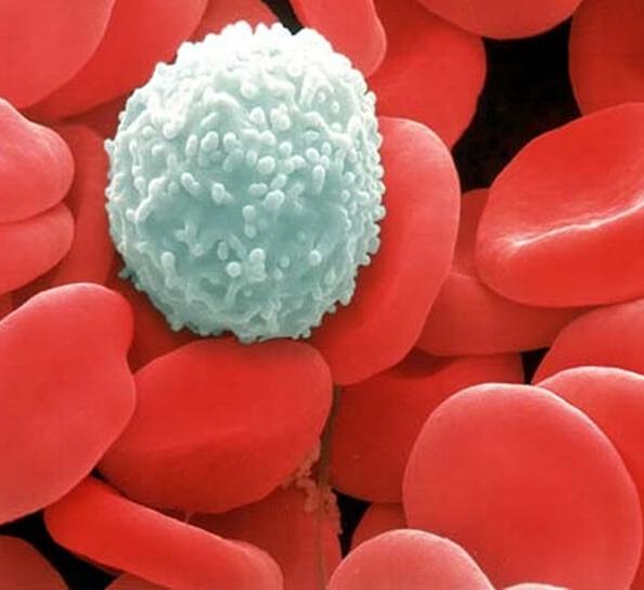 Мочевая кислота в крови повышена: симптомы, причины, лечение. Как снизить содержание мочевой кислоты в крови? Норма мочевой кислоты у мужчин, женщин, детей