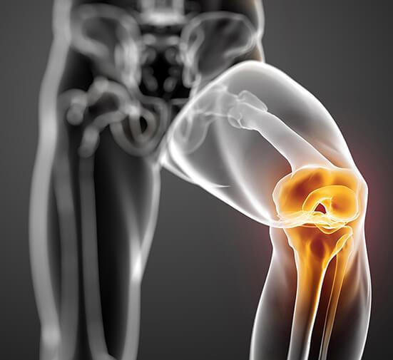 Лечение после травмы мениска коленного сустава: ЛФК при повреждении медиального мениска, менискэктомия застарелого повреждения, упражнения