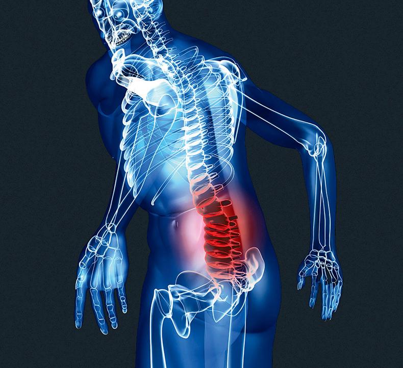 Комплекс упражнений для пояснично крестцового отдела позвоночника