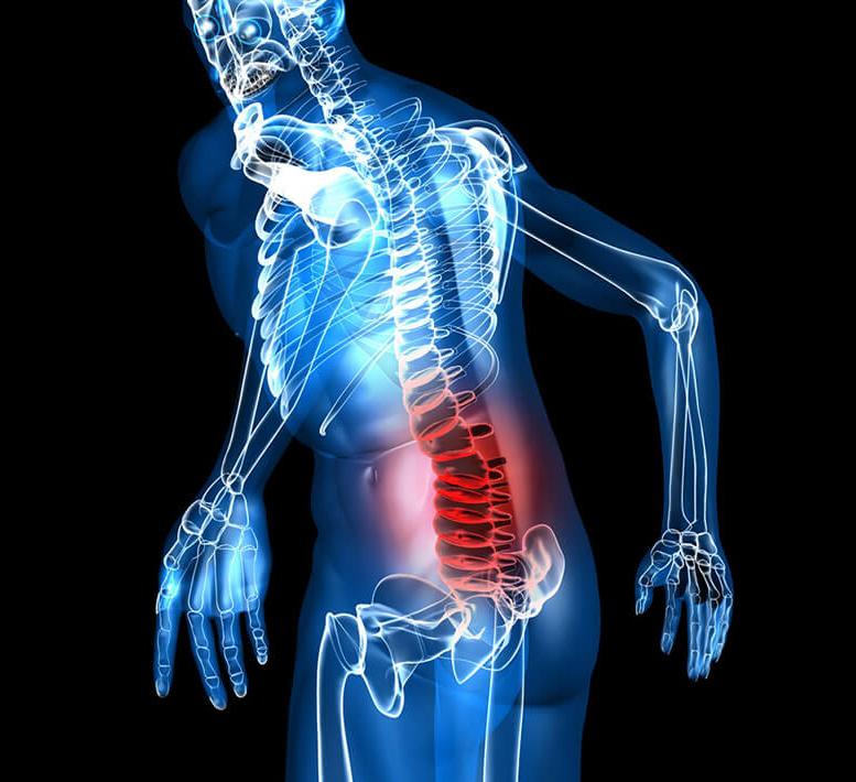 Лечебная гимнастика при остеохондрозе поясничного отдела позвоночника