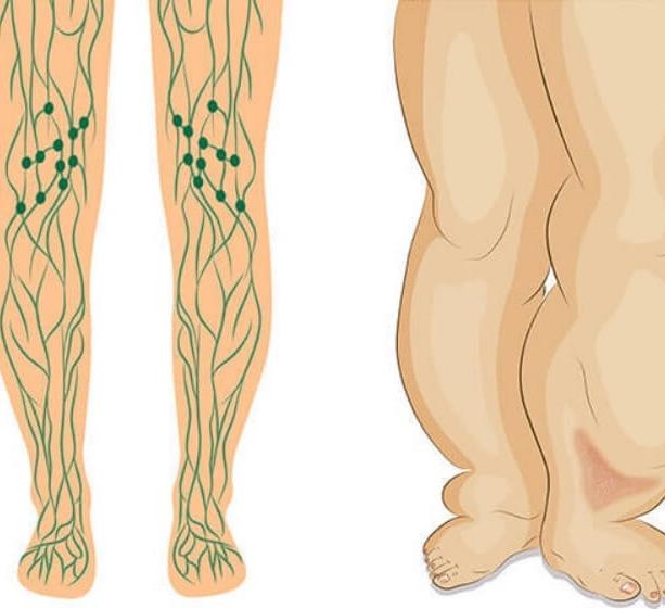 Лимфостаз - симптомы и лечение