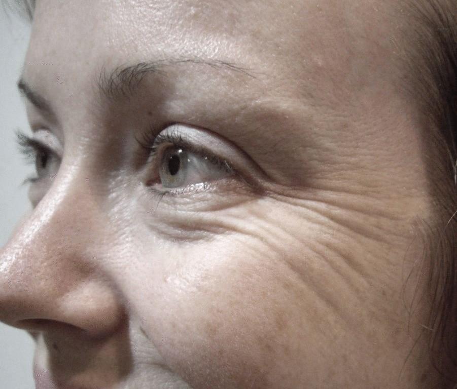 О чём говорят: глаза, язык, губы, нос, кожа, лоб