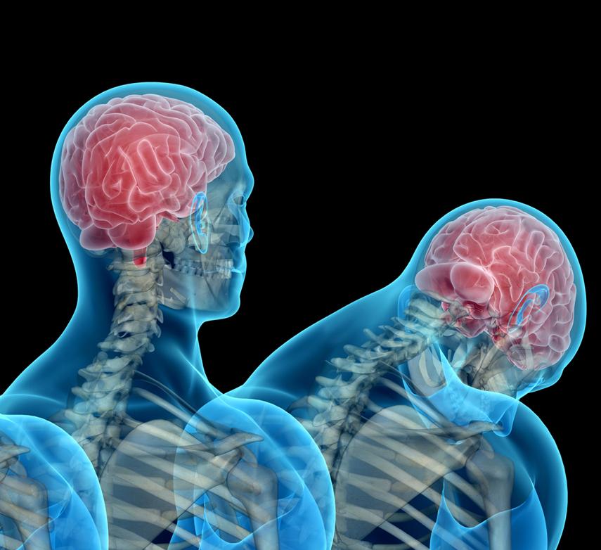 Первая помощь при сотрясении головы