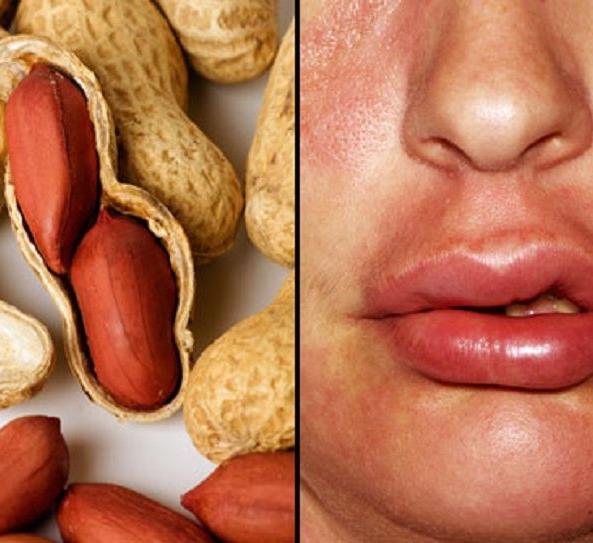 Можно ли много есть арахиса