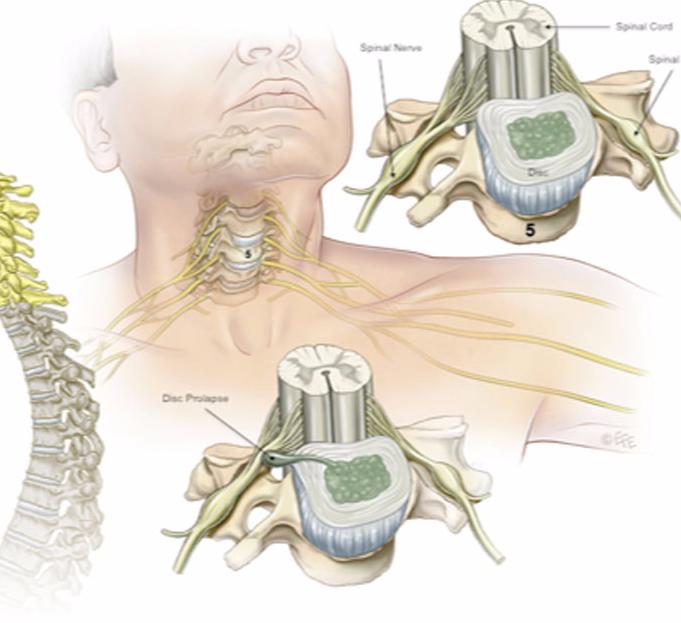 Осанка при остеохондрозе шейном остеохондрозе  Боли при шейном остеохондрозе