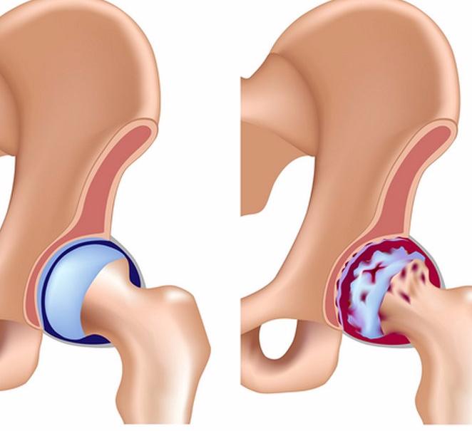 Медикаментозное лечение артроза 2 степени тазобедренного сустава