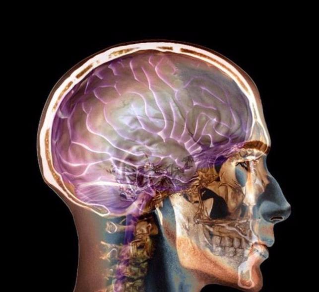 Как предотвратить болезнь Альгеймера