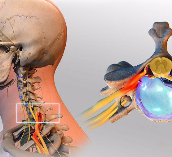 Упражнения для шейного отдела позвоночника межпозвонковая грыжа