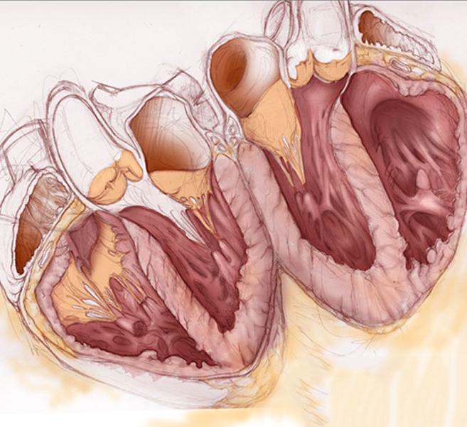 Учащенное сердцебиение - Стоит ли переживать???