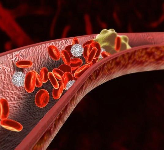 Как избежать тромбов: основы профилактических мер