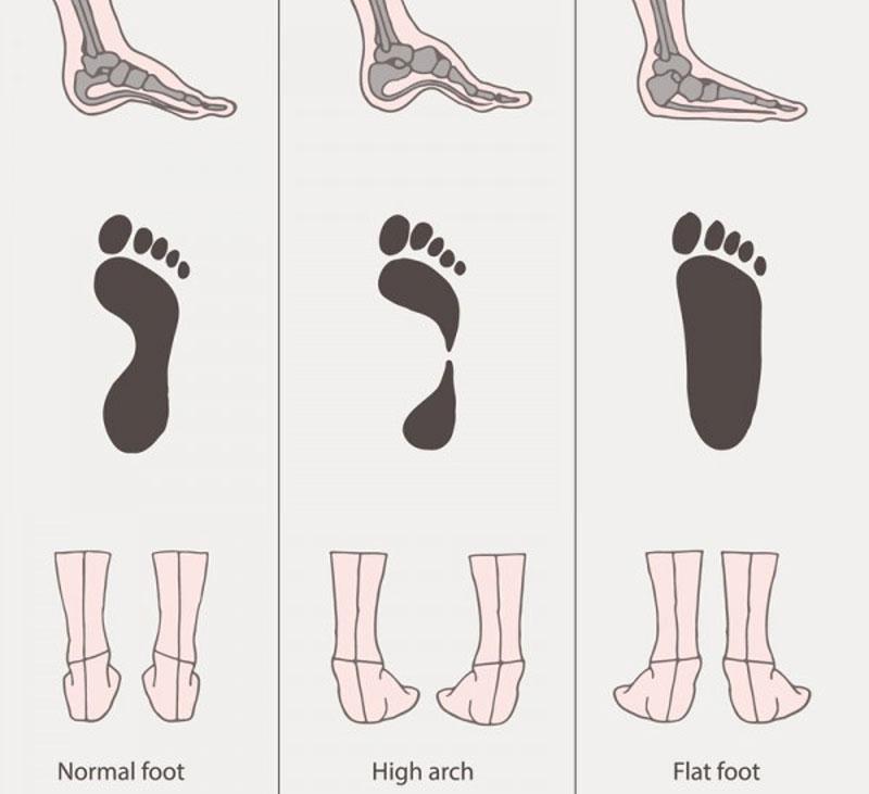 Выбор Обуви при плоскостопии - на что обратить внимание