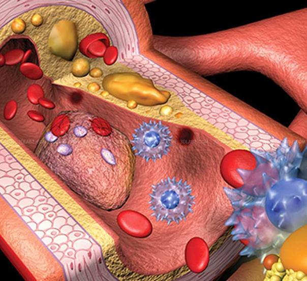 Показатель холестерина в крови норма у мужчин